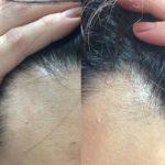 ヒト幹細胞培養液で、毛が!!!!